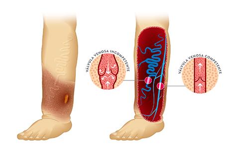 Dr Paz Dias, Médico Cirurgia Vascular, Cirurgia Vascular, Varizes, Tratamento Úlcera Varicosa, Definição, O que é